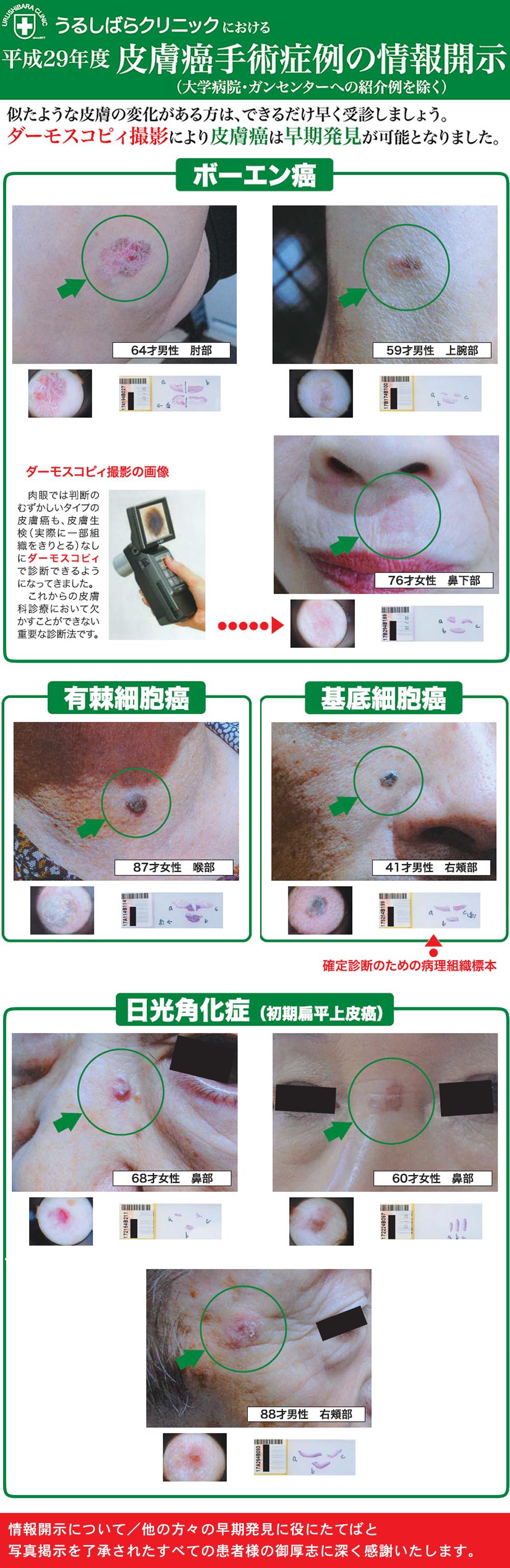 皮膚癌手術症例の情報開示