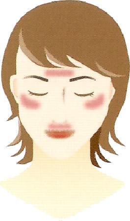額や口の周りに出るタイプ
