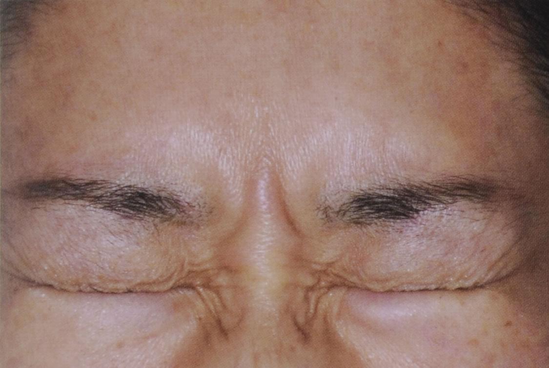 眉間のしわの改善例