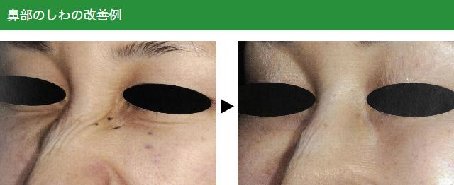 鼻部のしわの改善例
