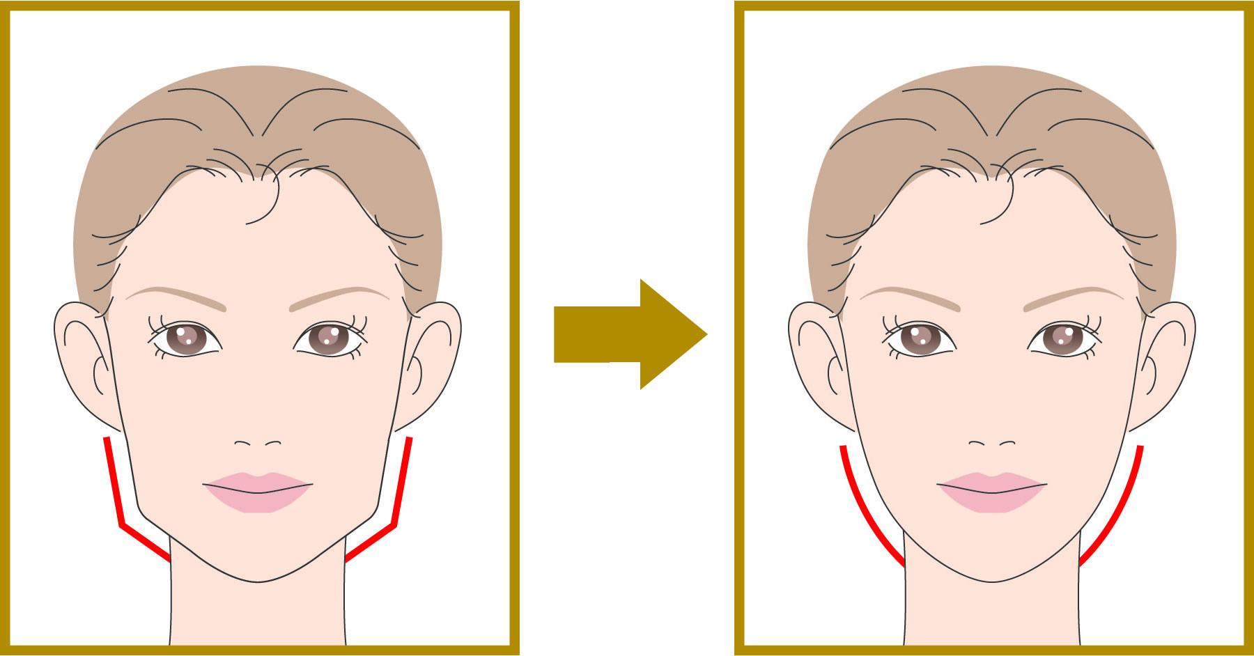 小顔Botox(ボトックス)