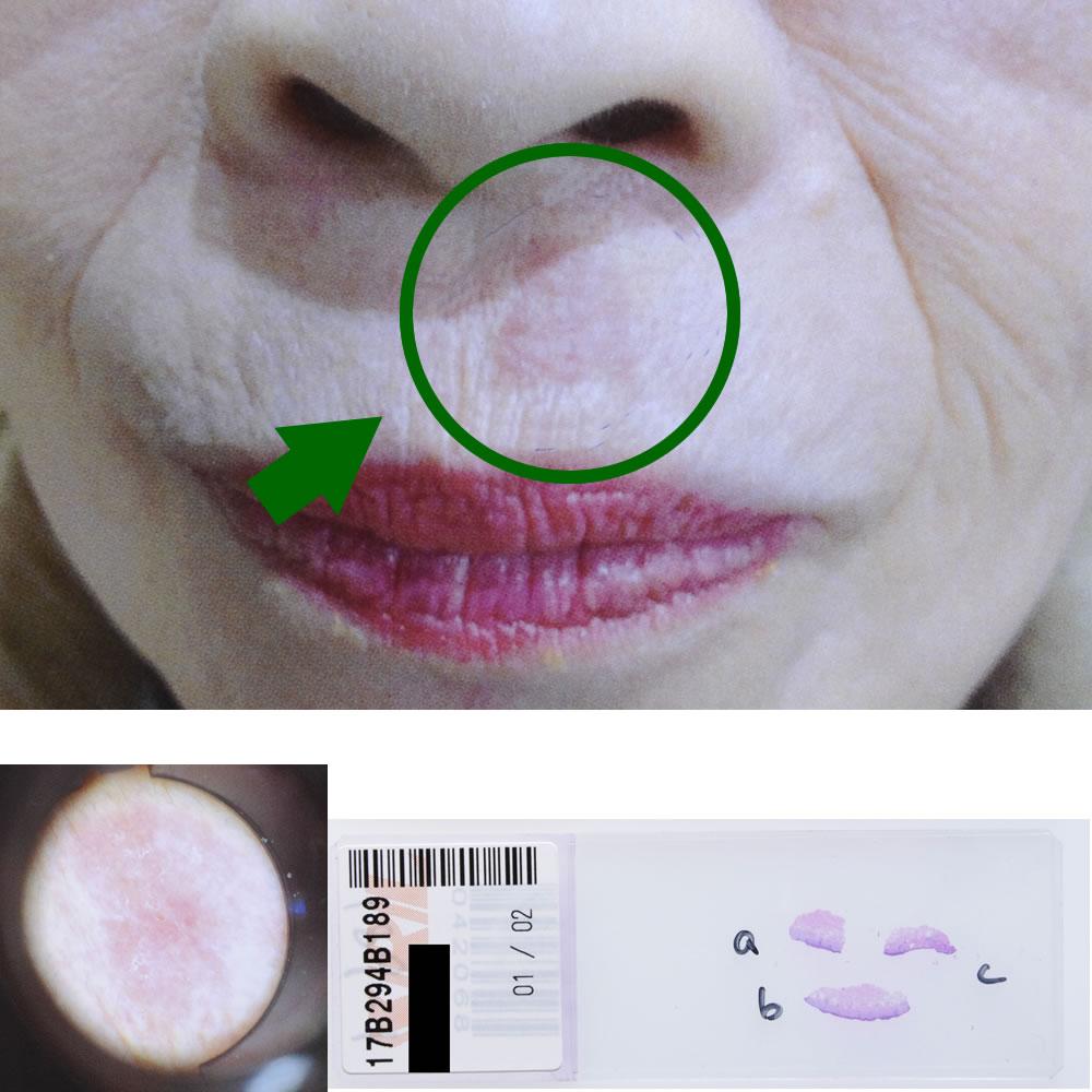ボーエン癌|76才女性|鼻下部