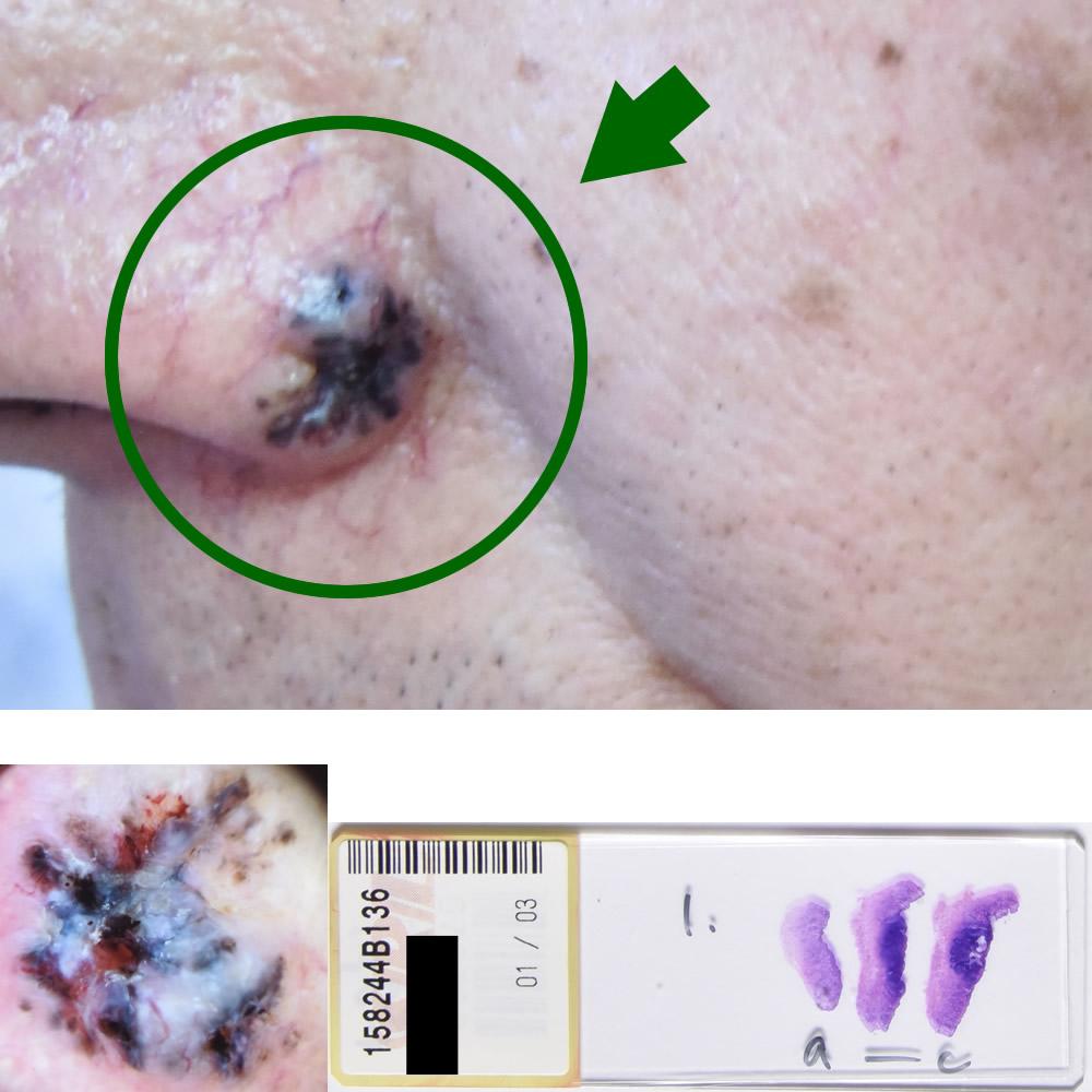 基底細胞癌|64才男性|鼻部