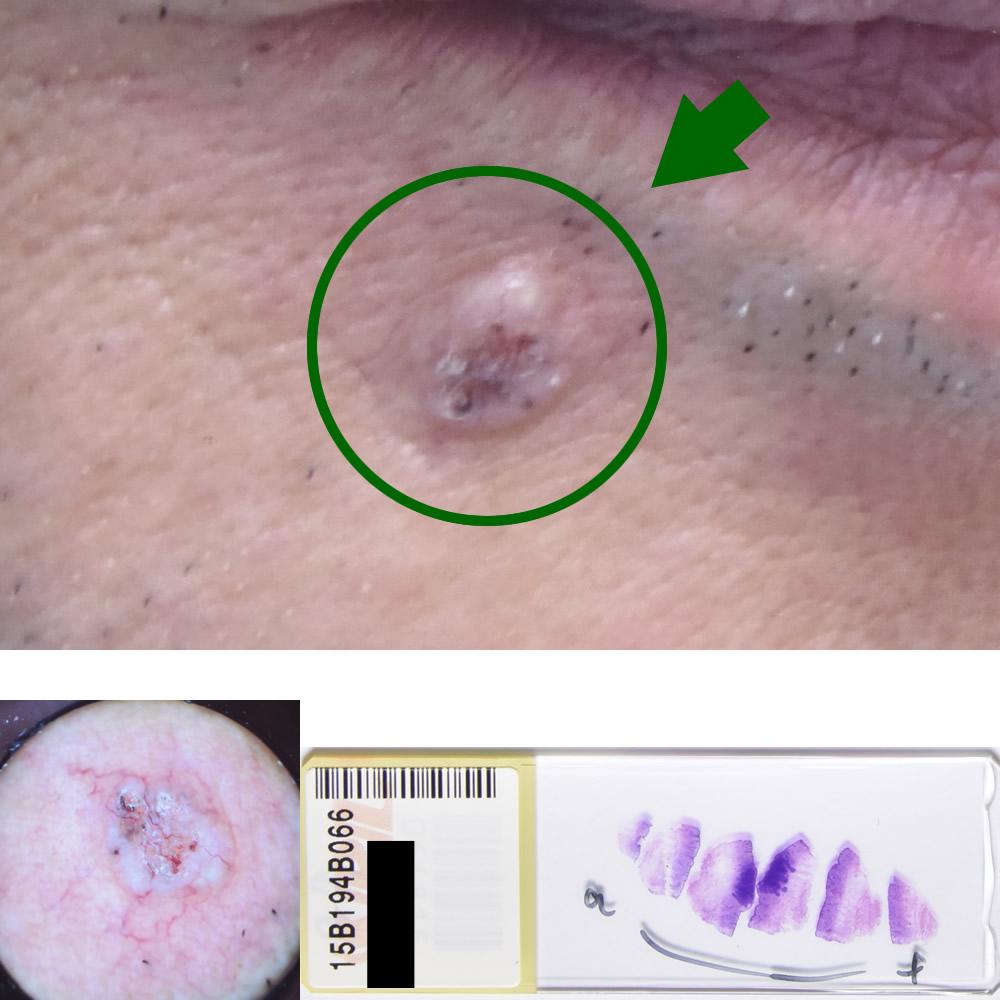 基底細胞癌|68才男性|右下口唇