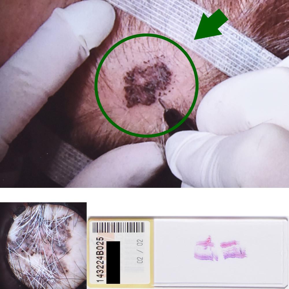 基底細胞癌|68才女性|側頭部
