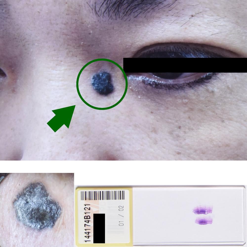 基底細胞癌|44才女性|左内眼角部