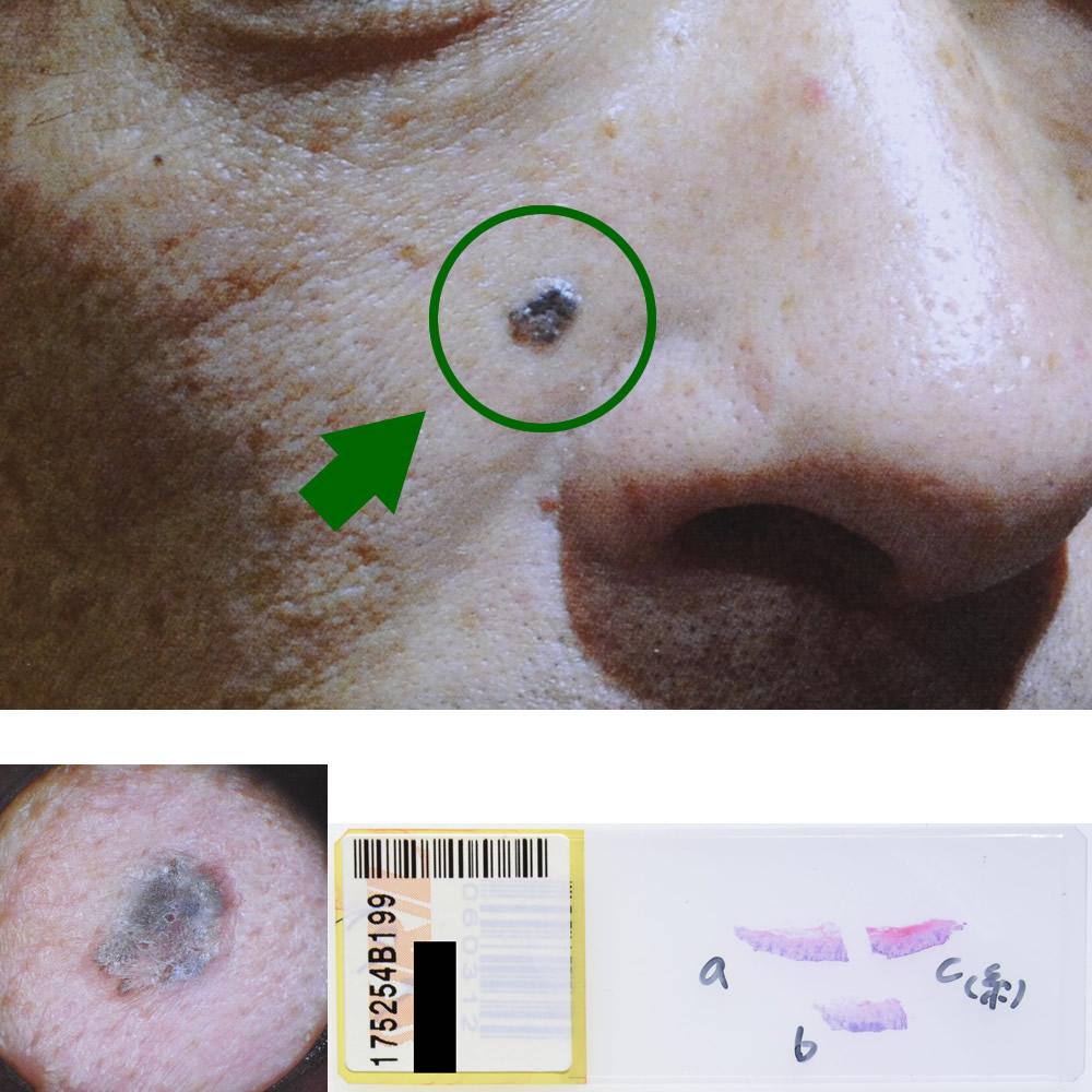 基底細胞癌|41才男性|右頬部