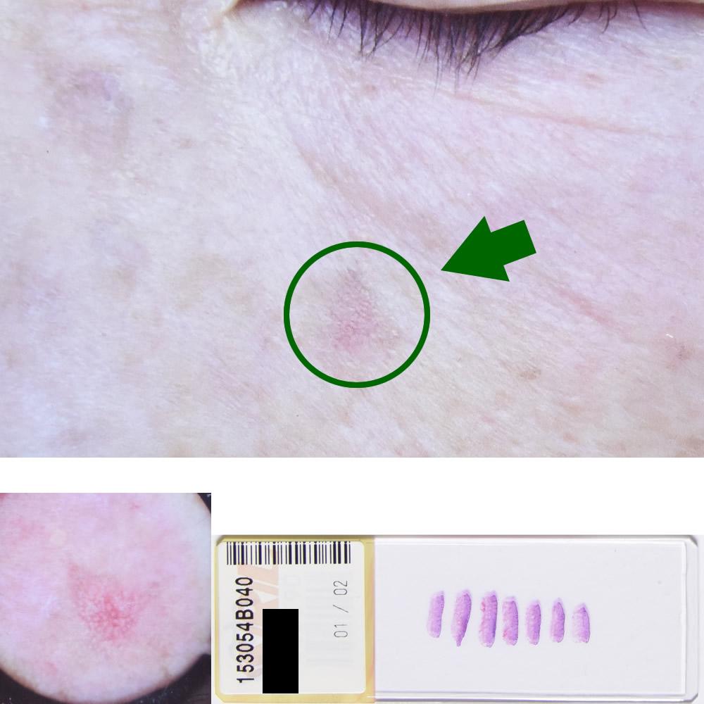 日光角化症|68才女性|左頬部