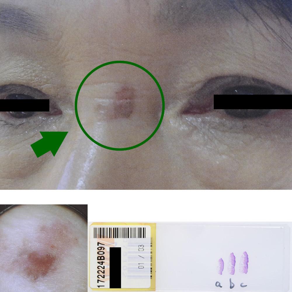 日光角化症|60才女性|鼻部