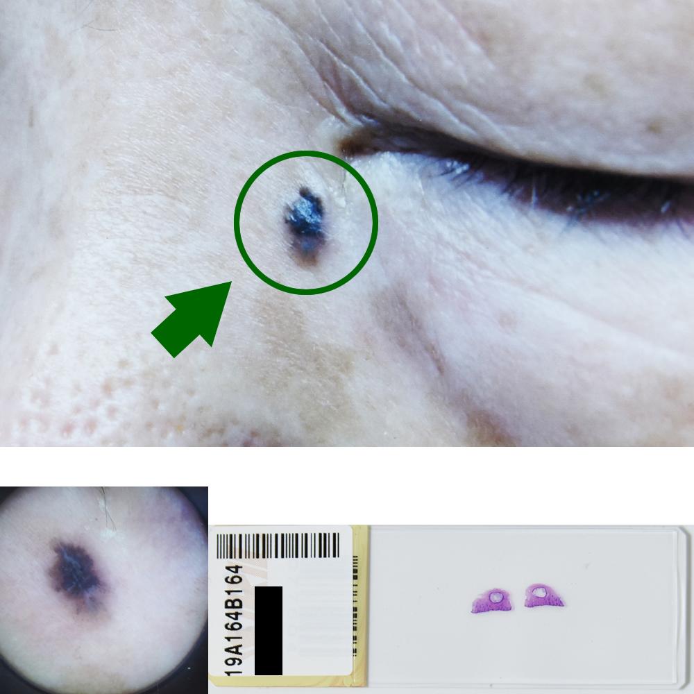 基底細胞癌|79才女性|左内眼角