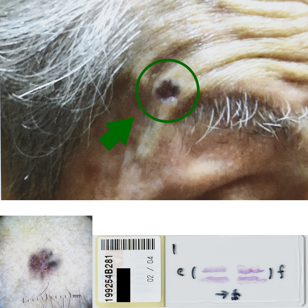 基底細胞癌|85才男性|右こめかみ