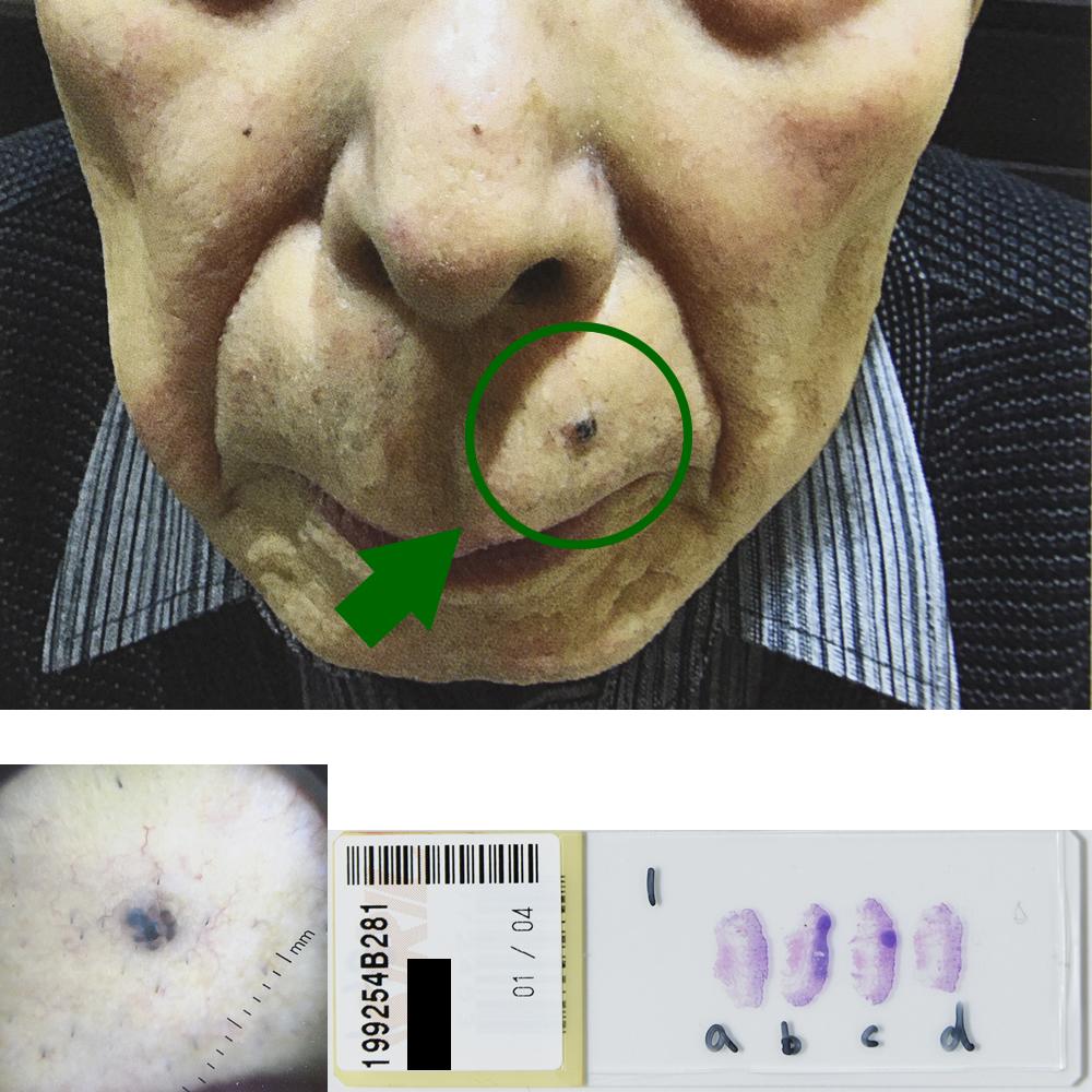 基底細胞癌|85才男性|左鼻下