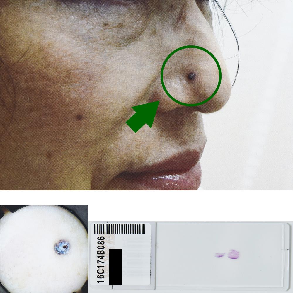 基底細胞癌|58才女性|右鼻翼