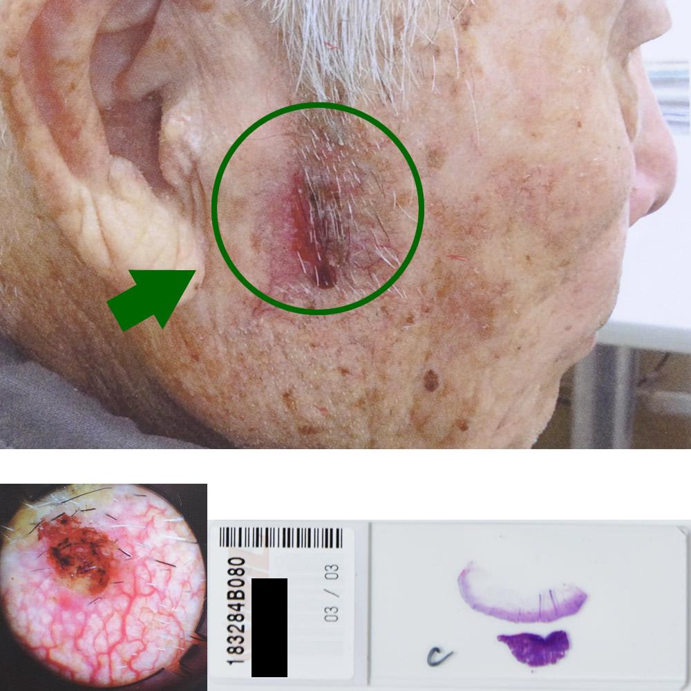 日光角化症|88才男性|右耳前部