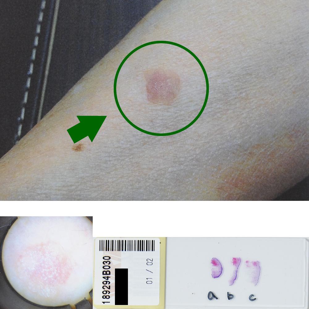 汗孔角化症|69才女性|右前腕