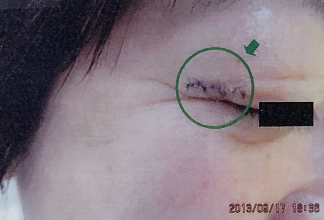 皮膚癌外来手術