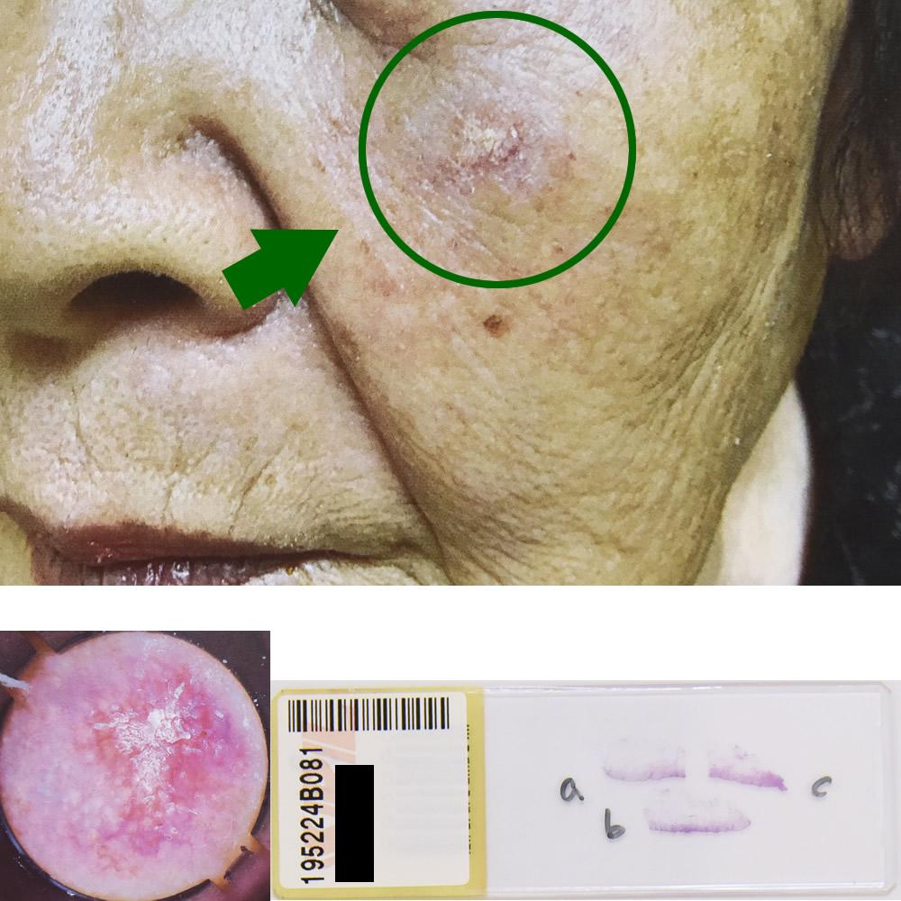 日光角化症|85才女性 左頬