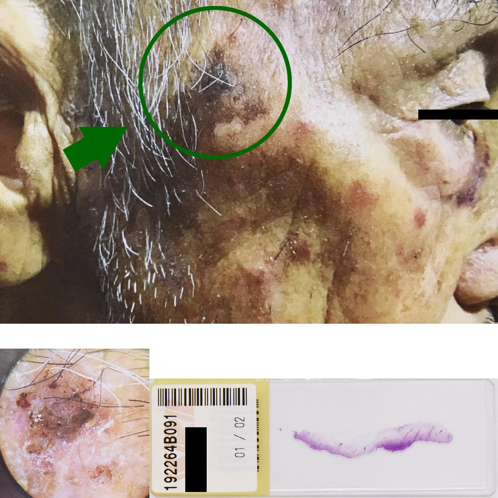 日光角化症|92才男性 右こめかみ