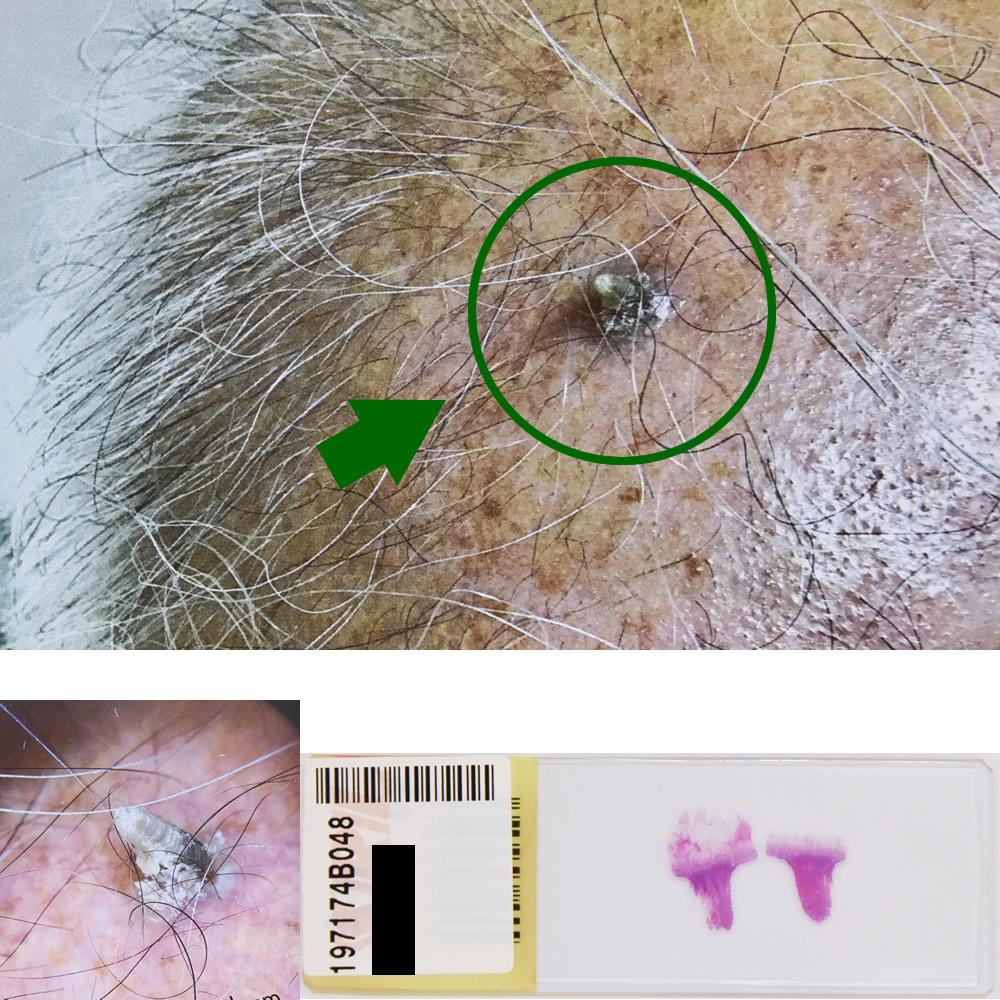 日光角化症|77才男性 頭