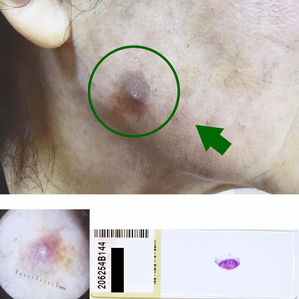 ケラトアカントーマ(前癌状態)|78才女性|右顎部