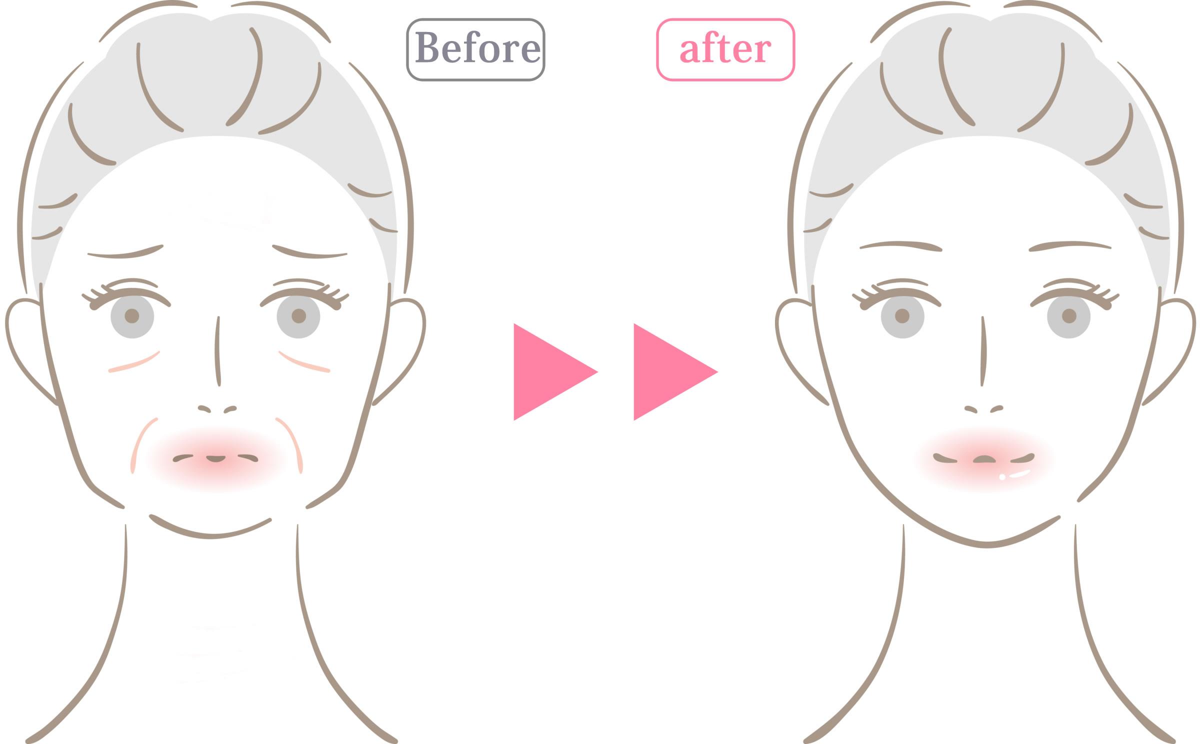 皮膚 科 保険 適用 取り シミ