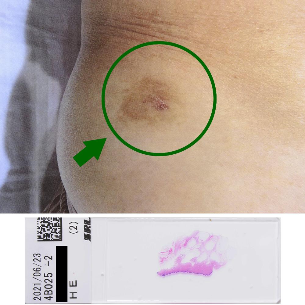 ボーエン癌|67才女性|右側腹部