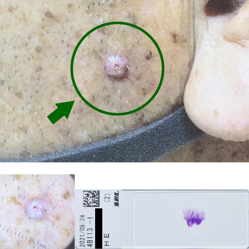 ケラトアカントーマ(前癌状態)|54才男|左頬部